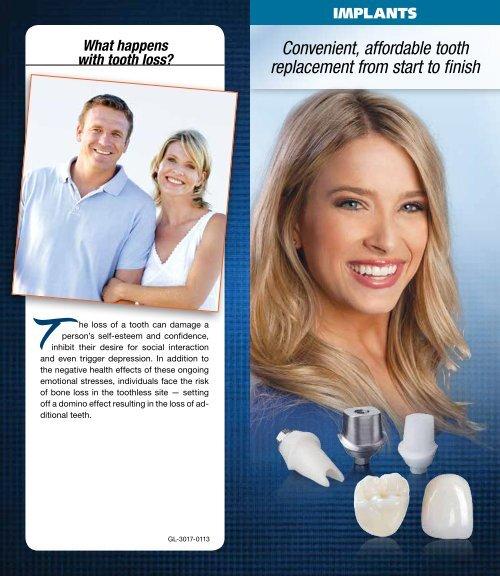 Implants - Glidewell Dental Labs