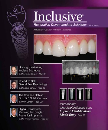 PDF Download - Glidewell Dental Labs