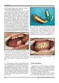 pełna wersja do pobrania - Protetyka Stomatologiczna - Page 4