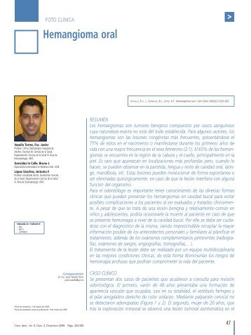 Hemangioma oral - COEM