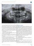 Estudio transversal de hipodoncias no sindrómicas en una ... - COEM - Page 3
