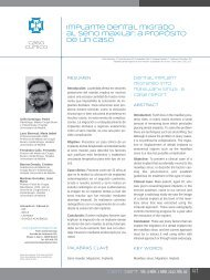 Implante dental migrado al seno maxilar: a propósito de un ... - COEM