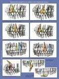 Transposiciones dentarias. Revisión bibliográfica. - COEM - Page 3