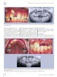 Transposiciones dentarias. Revisión bibliográfica. - COEM - Page 6