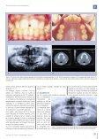 Transposiciones dentarias. Revisión bibliográfica. - COEM - Page 7