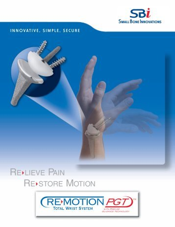 6061 remotion brochure final - Small Bone Innovations