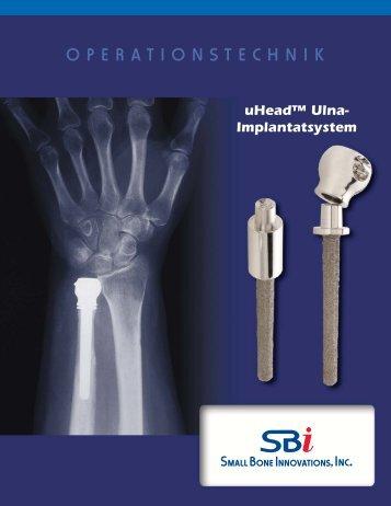 uHead™ Operationstechnik - Small Bone Innovations