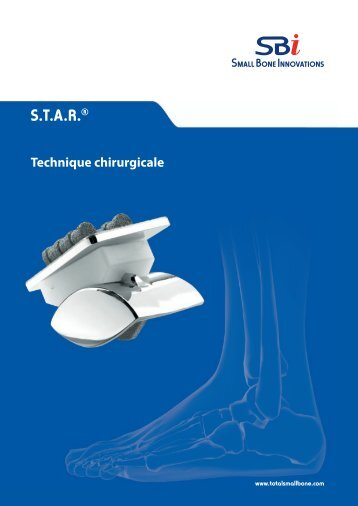 AutoFIX Product Brochure - Small Bone Innovations