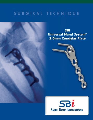 SURGICAL TECHNIQUE - Small Bone Innovations