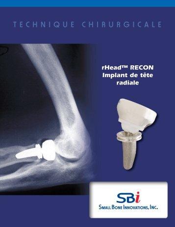 rHead™ RECON Technique Chirurgicale - Small Bone Innovations