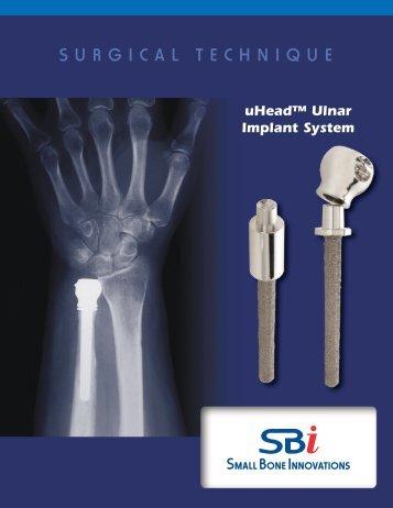 uHead Ulnar Implant System - Small Bone Innovations