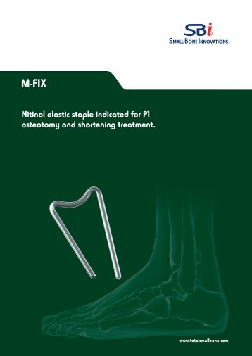 M-FIX™ Surgical Technique - Small Bone Innovations