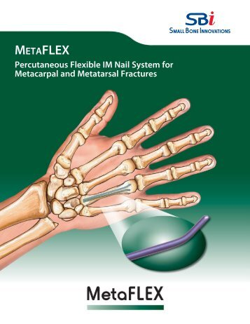 Download the MetaFLEX Product Overview - Small Bone Innovations