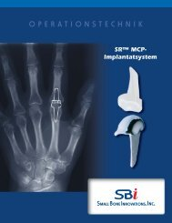 Download Surgical Technique - Small Bone Innovations