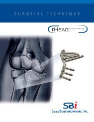 Download the Surgical Technique - Small Bone Innovations