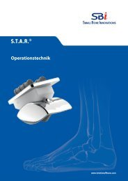 [SBi] STAR® Operationstechnik | 26.02.2010 - Small Bone Innovations
