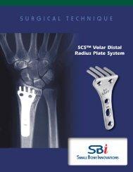 SCS™ Volar Distal Radius Plate System - Small Bone Innovations