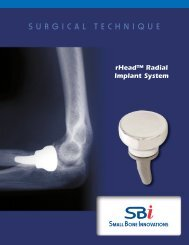 rHead™ Radial Implant System - Small Bone Innovations