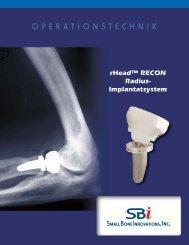 rHead™ RECON Surgical Technique - Small Bone Innovations