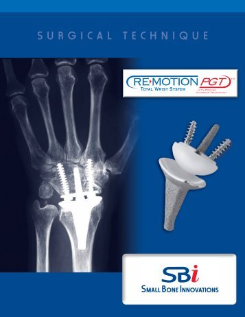 RE-MOTION™ Total Wrist Implant System Surgical Technique