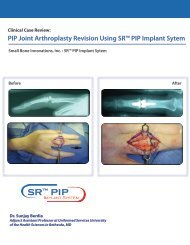 PIP Joint Arthroplasty Revision Using - Small Bone Innovations