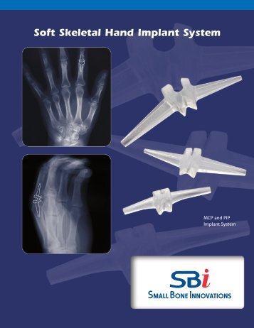 Download the Product Brochure - Small Bone Innovations