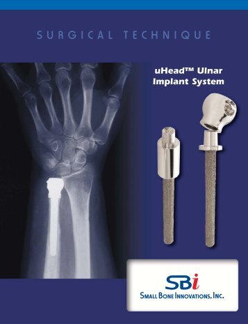 Download the uHead Surgical Technique - Small Bone Innovations