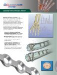 5117 UHS brochure final - Small Bone Innovations - Page 2