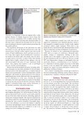 American Journalof Orthopedics® - Small Bone Innovations - Page 5