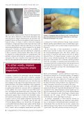 American Journalof Orthopedics® - Small Bone Innovations - Page 6