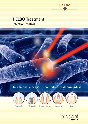 HELBO Treatment - bredent medical GmbH & Co.KG