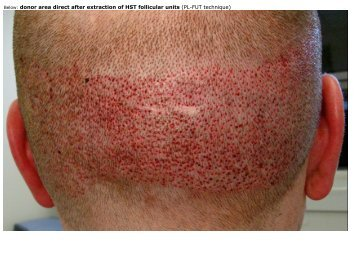 Below: donor area direct after extraction of HST ... - HairSite.com