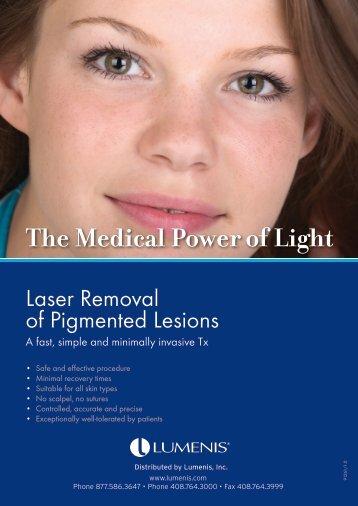 Pigmented Lesions Brochure (PDF) - Lumenis Aesthetic