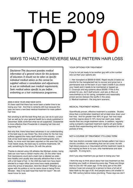 10 Male Things Hair Loss