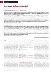 Karcinom ledvin dospělých - Onkologie