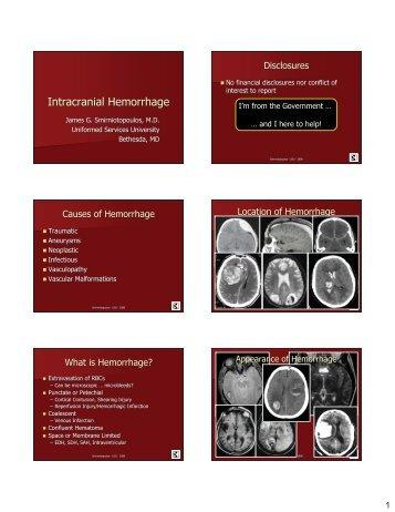 Intracranial Hemorrhage - Inova Health System
