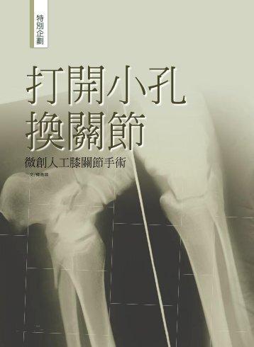 微創人工膝關節手術 - 佛教慈濟綜合醫院