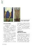 微創人工膝關節手術 - 佛教慈濟綜合醫院 - Page 3
