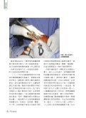 微創人工膝關節手術 - 佛教慈濟綜合醫院 - Page 7