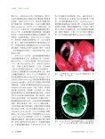 立即內視鏡手術修補腦脊髓液鼻漏併發腦膿瘍 - Page 2