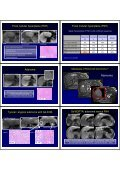 hepatobiliary contrast agents - Page 6