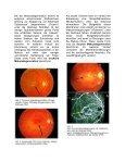 Altersbezogene Makuladegeneration (AMD) - Page 2