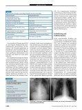Hochfrequenzoszillationsventilation beim akuten Lungenversagen ... - Page 2