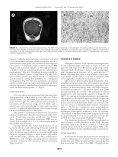 Dural Lesions Mimicking Meningiomas - Page 6