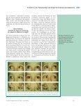 Pathophysiologie und Therapie des Strabismus deorsoadductorius - Seite 7