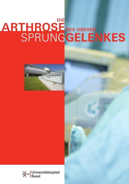 Arthrose des oberen Spunggelenkes - Universitätsspital Basel