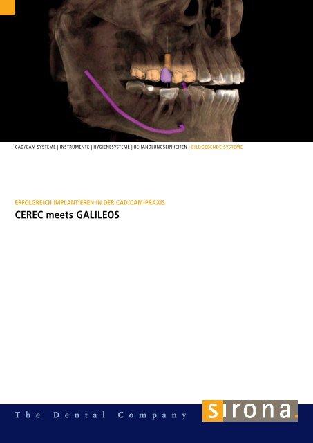 CEREC meets GALILEOS - Sirona