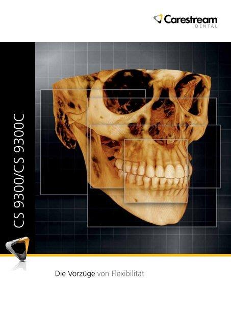 CS 9300/CS 9300C - 3d-roentgen.ch