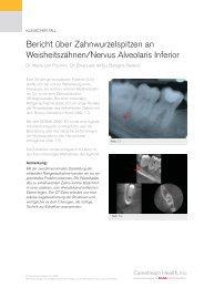 Bericht über Zahnwurzelspitzen an ... - 3d-roentgen.ch