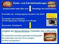 2. Wie wirkt die Protrusionsschiene?